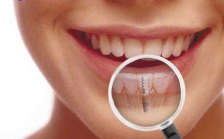 Как ухаживать за зубами после имплантации